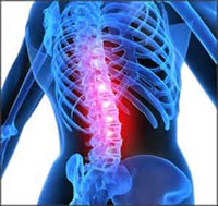Treatment for Neck and Lower Back Pain in Venice, Florida